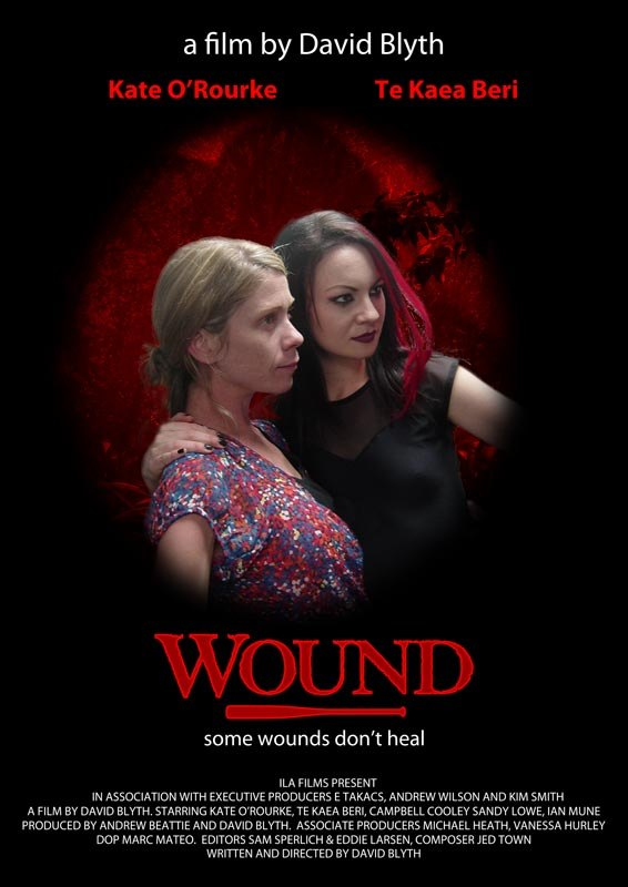 Wound images - Poster 5